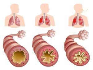 Аортокардиосклероз легких