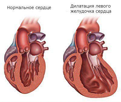 Дилатация полости левого желудочка что это такое