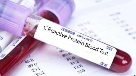 С реактивный белок повышен причины лечение