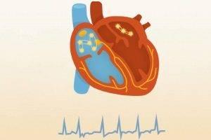 Хроническое легочное сердце классификация
