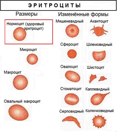 MCV в анализе крови таблица
