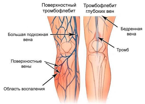Как болят вены на ногах симптомы