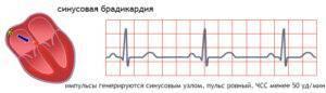 Синусовая брадикардия сердца чем опасна