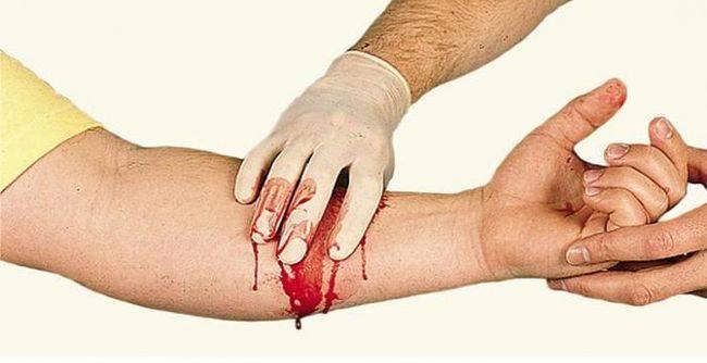 Клинические признаки венозного кровотечения