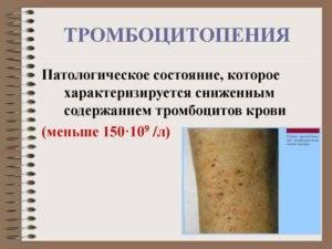 Коэффициент больших тромбоцитов понижен