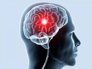 Лейкоареоз головного мозга
