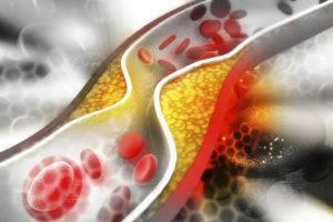 LDL в биохимическом анализе крови