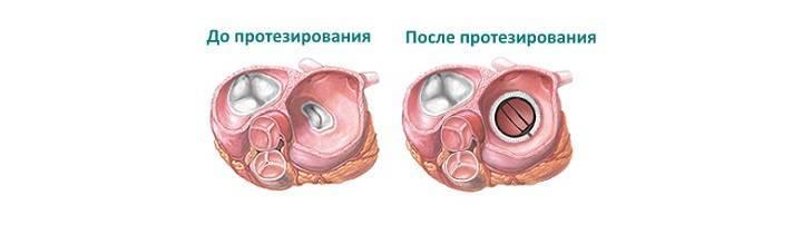 Митральный клапан сердца операция