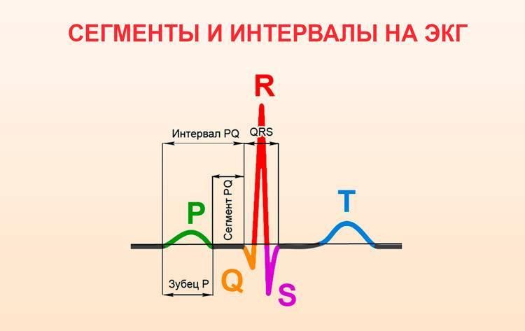 Расшифровка экг синусовый ритм вертикальное положение эос