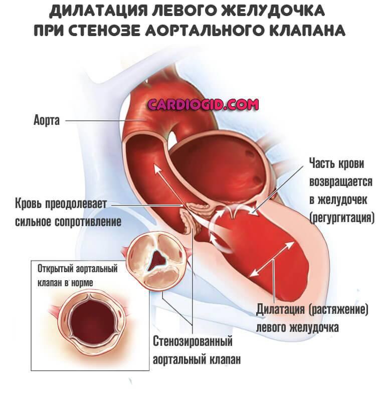 Первые признаки предынфарктного состояния у женщин