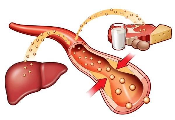Густая кровь: причины и лечение у женщин, при беременности, мужчин, новорожденного ребенка. Симптомы, чем опасна, как разжижать, диета