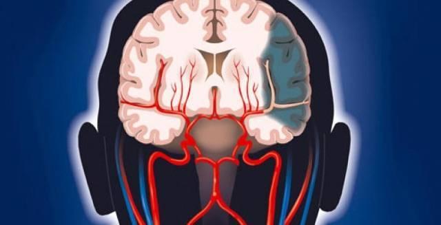 Дегенеративные изменения головного мозга