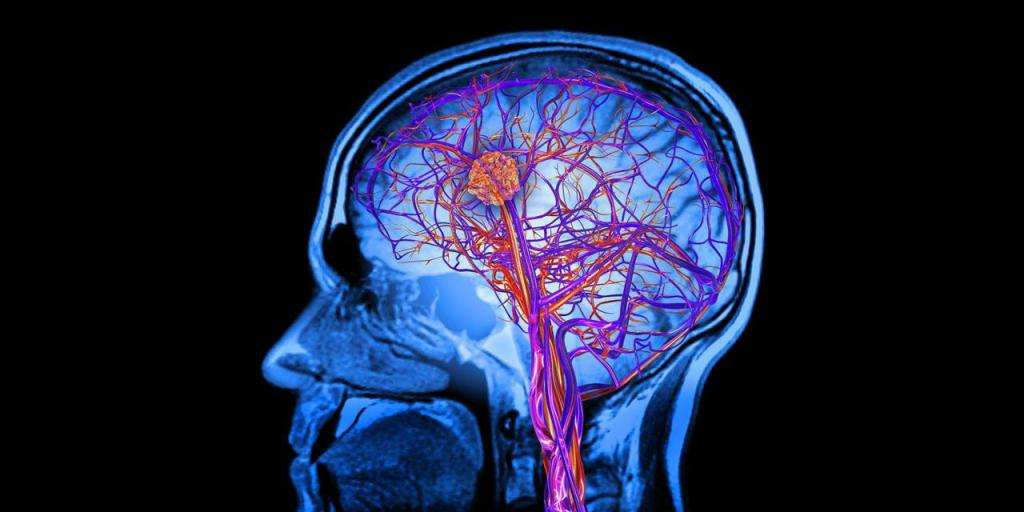 Очаговые изменения белого вещества мозга дистрофического характера