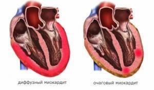 Воспаление сердечной мышцы симптомы у взрослых