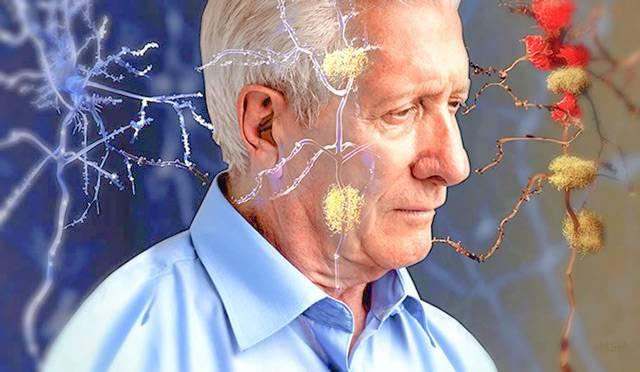 Мелкоочаговые изменения белого вещества головного мозга