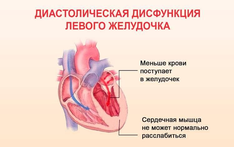 Дисфункция левого желудочка