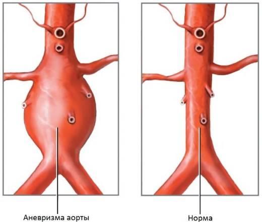 Артериальная гипертензия что это такое симптомы лечение