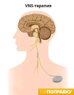 Эпилепсия с частыми припадками