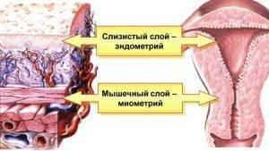 Кальциноз миометрия