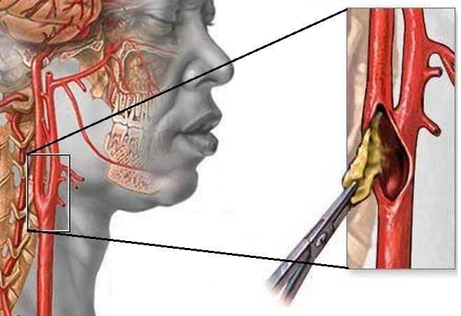 Начальные признаки атеросклероза бца