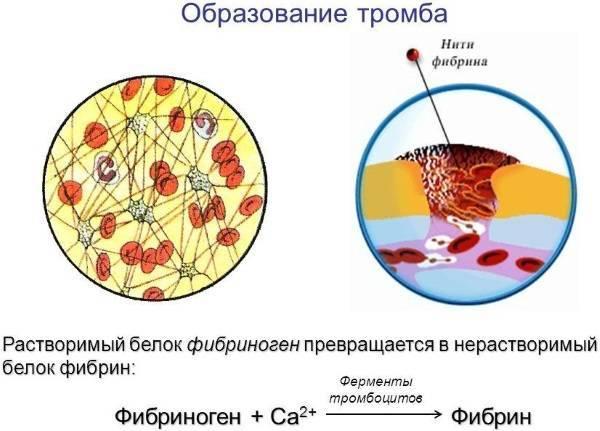 Фибриноген в крови у женщин. Норма по возрасту в процентах. О чем говорит повышенный, пониженный, что делать