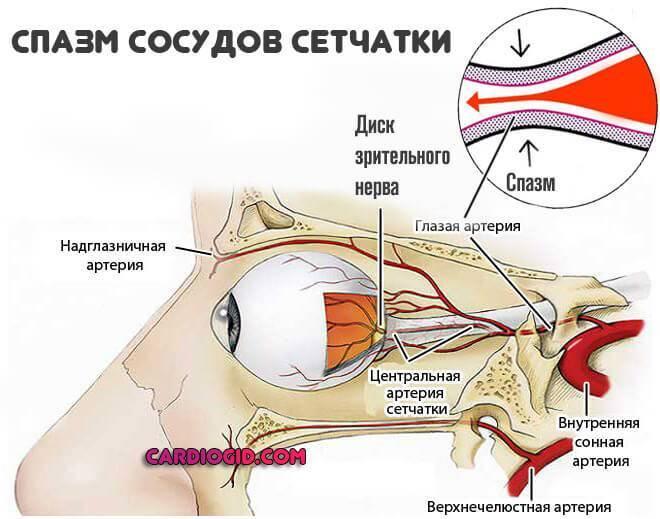 спазм-сосудов-сетчатки