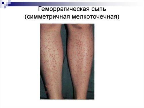 Геморрагии на коже фото