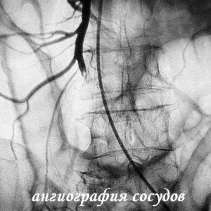 Инфаркт кишечника что это такое и последствия