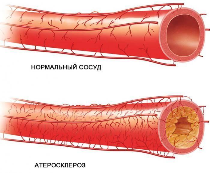 Пониженный тромбокрит в крови причины