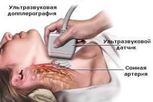 УЗД брахиоцефальных артерий