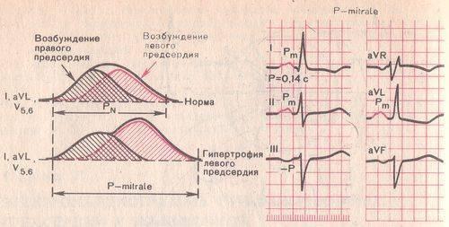 Схема нормальной экг