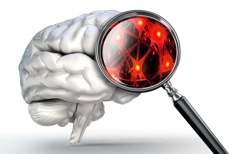 Атрофические изменения головного мозга что это такое