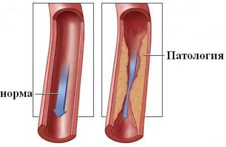 Стеноз левой позвоночной артерии