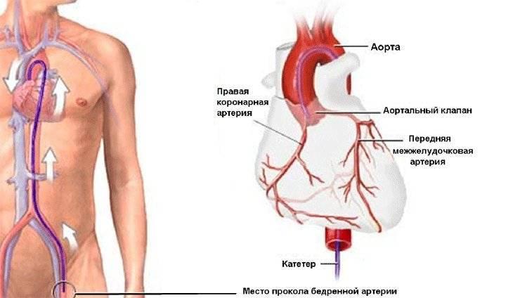 Каронографическая операция на сердце сколько живут