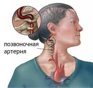 Поражение левой позвоночной артерии при экстравазальной компрессии