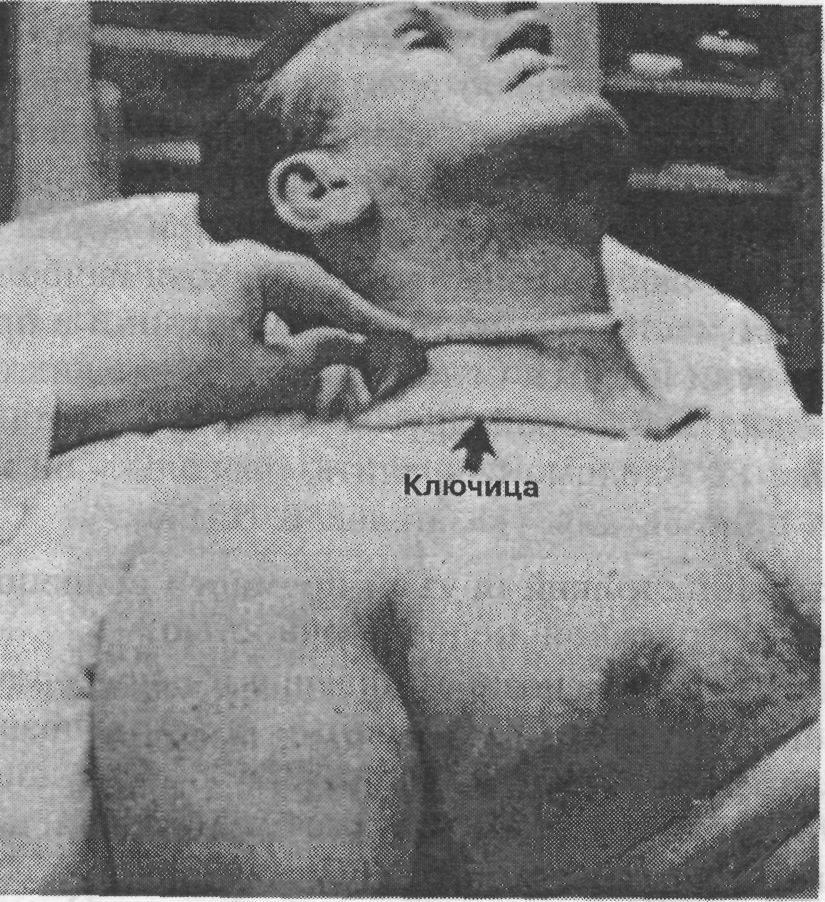 Сильная пульсация в шее