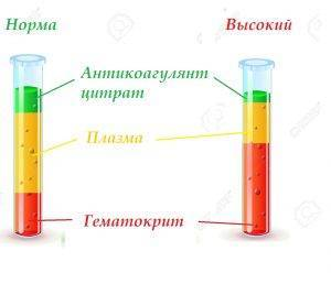 Пониженный гематокрит в крови у женщин