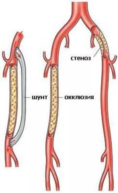 Непроходимость сосудов нижних конечностей лечение