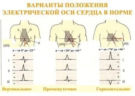 elektrokardiografiya-min