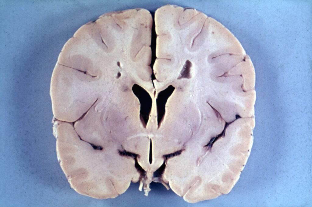 Мозг при болезни Александера