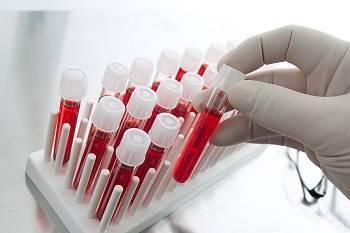 Показатель анизоцитоза эритроцитов выше нормы причины