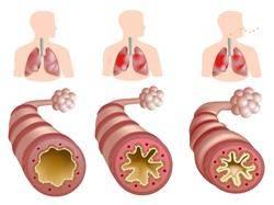 Стеноз артерии легкого