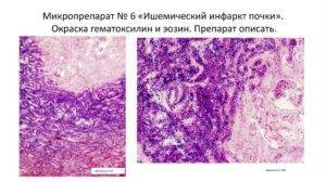 Ишемический инфаркт почки микропрепарат