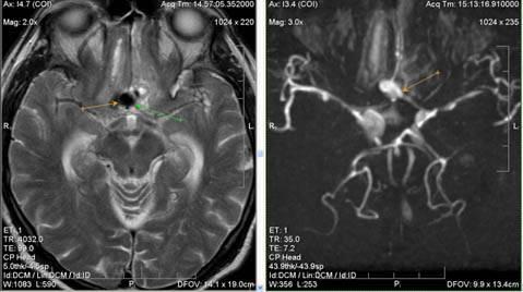 Передняя трифуркация левой внутренней сонной артерии