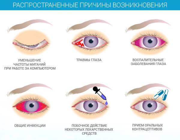 Сосудорасширяющие препараты для глаз