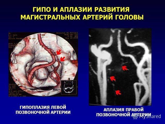 развитие гипоплазии