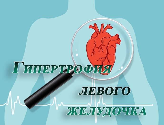 Незначительная гипертрофия миокарда левого желудочка