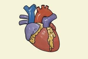 Умеренная гипертрофия миокарда левого желудочка