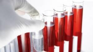 пробирки с кровь для анализа