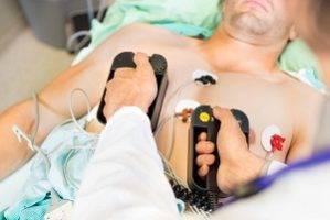 Правила проведения сердечно легочной реанимации кратко
